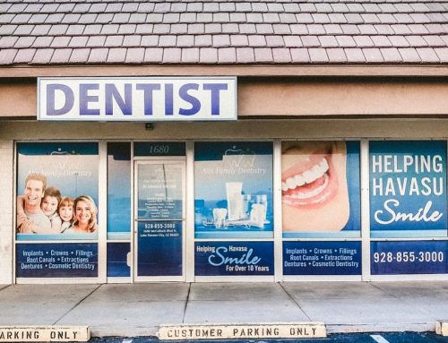 Ahn Family Dentistry Window Perfs